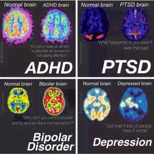 Scan cerveau dépression